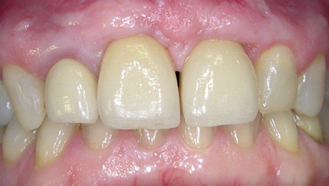 Couronne Céramique sur 2 implants Après