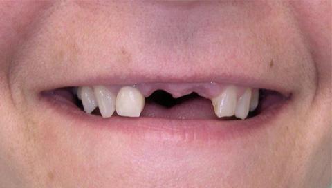 Couronne Céramique sur 2 implants Avant