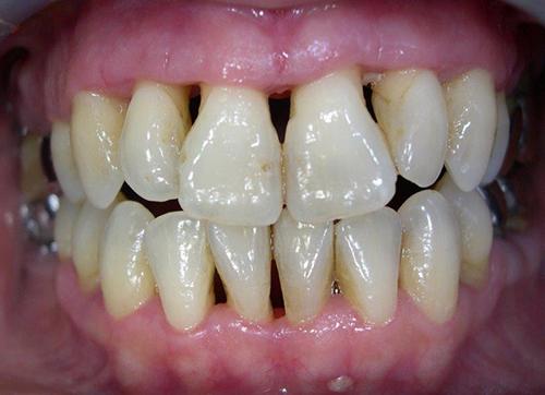 Parodontite Après