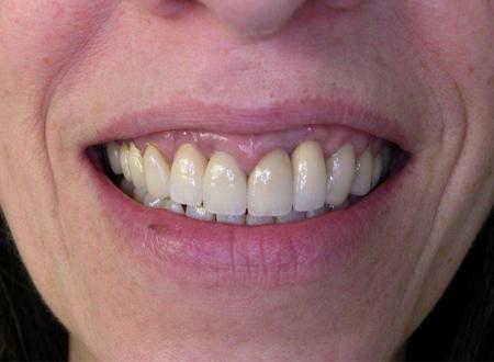 Prothèse tout Céramique sur implant et dent naturelle Après