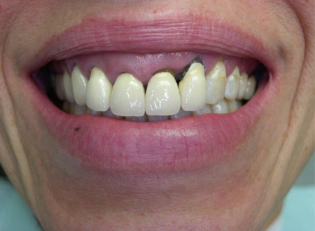 Prothèse tout Céramique sur implant et dent naturelle Avant