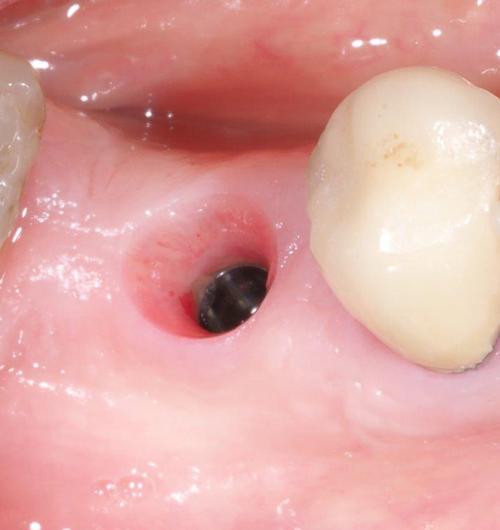 Remplacer une dent cas cliniques