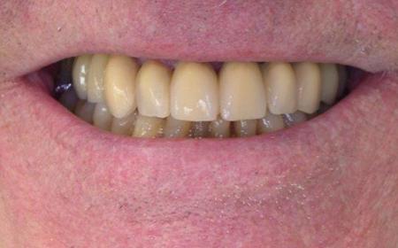 Prothèse complète fixe du bas sur 6 implants et traitement parodontite Après