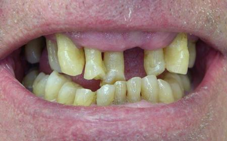 Prothèse complète fixe du bas sur 6 implants et traitement parodontite Avant
