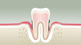 Parodontologie & Hygiène Libourne